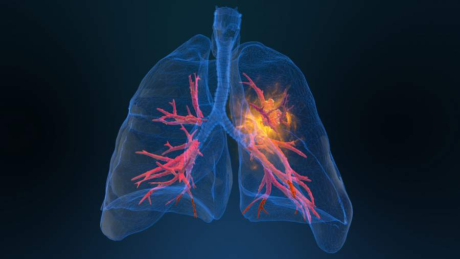 Lung Cancer & Their Treatments