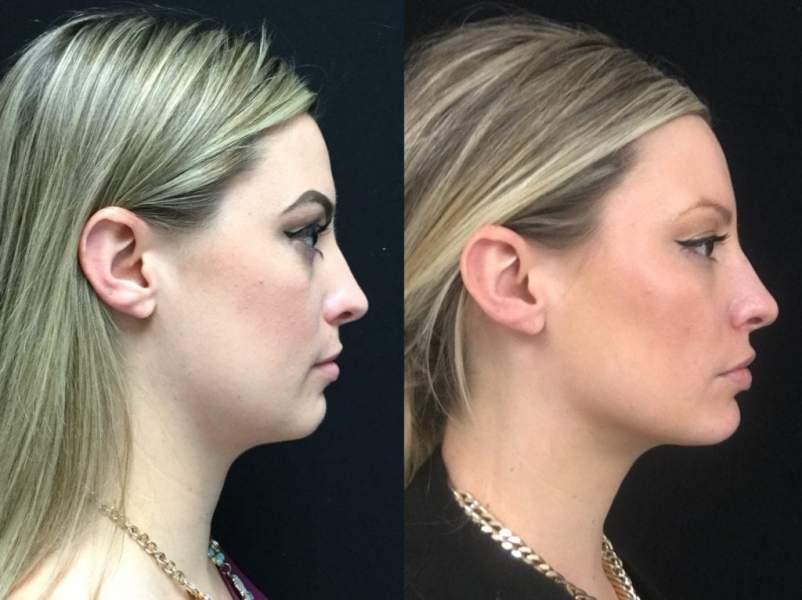 Non Surgical Chin Augmentation