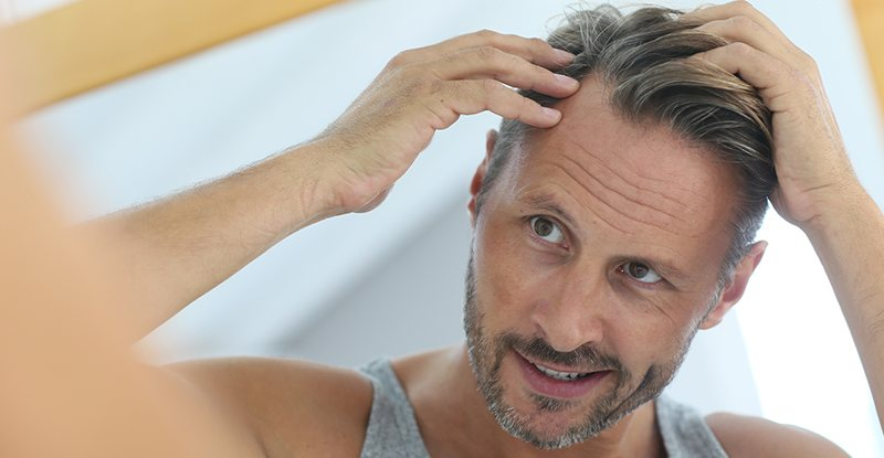 Arranging For A Hair Transplant