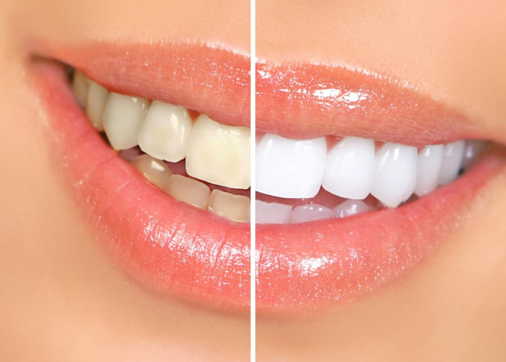 Tips for Sparkling White Teeth and Problem Free Gums