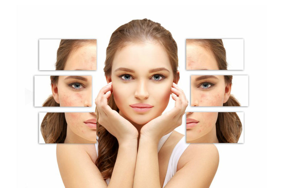 6 Simple Tips to Remove Pimples Effectively