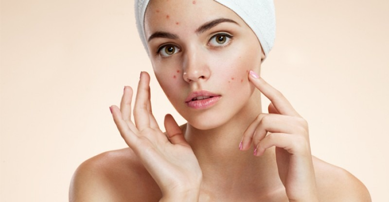 What are the basic types of spots caused by pimples
