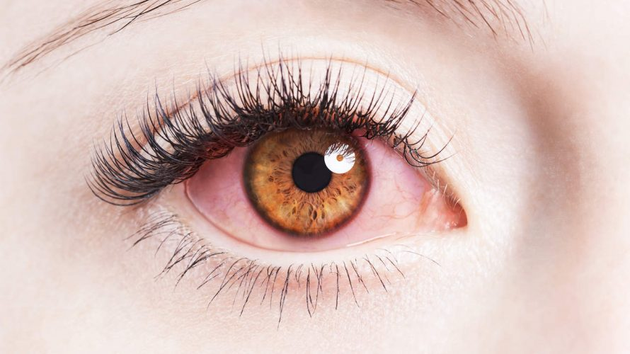 Your eye life may be inflamed