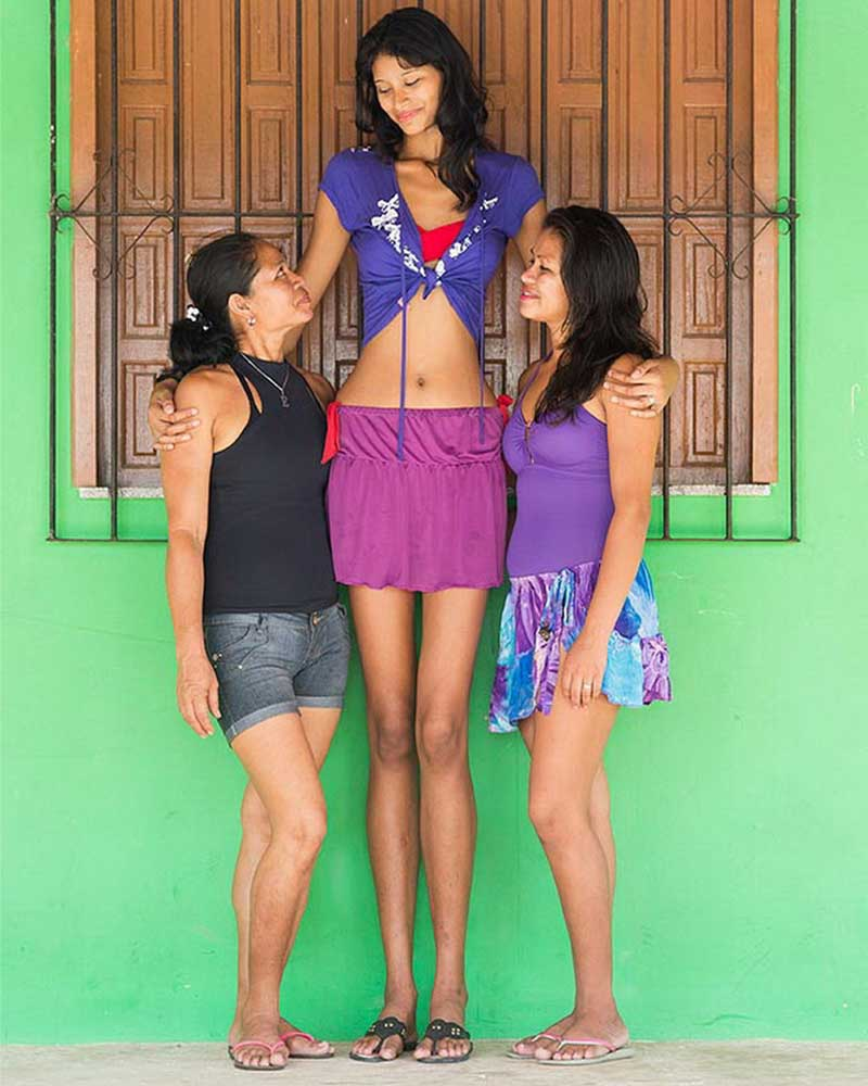 The tallest woman on the planet