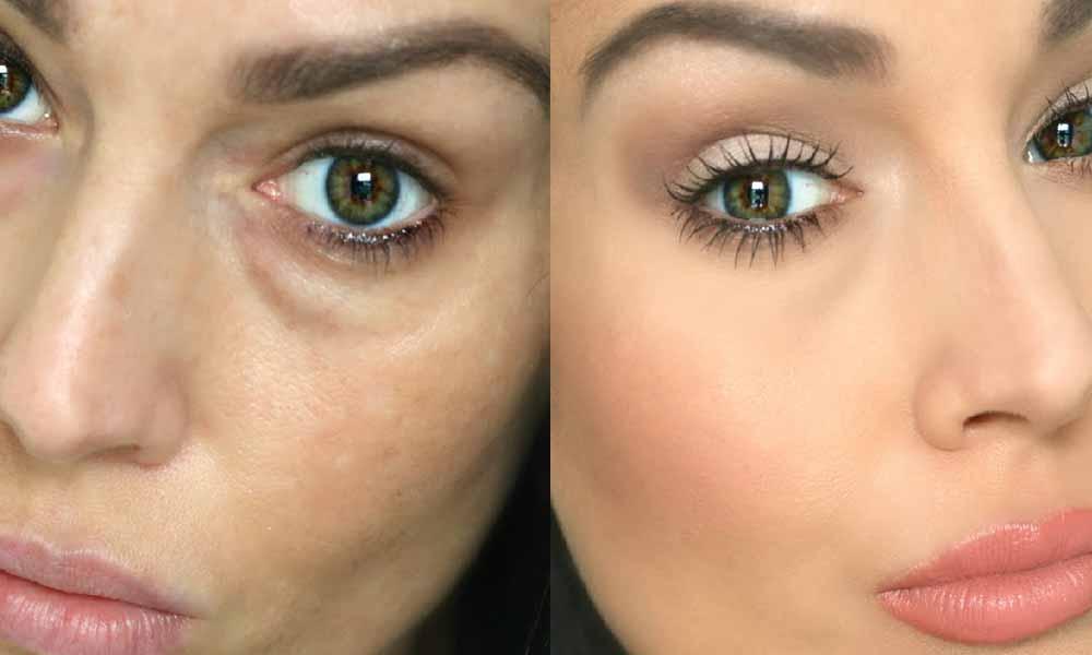 Reduces Dark Circles under Your Eyes