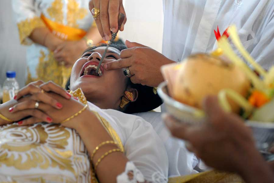 Tooth Filling in Indonesia