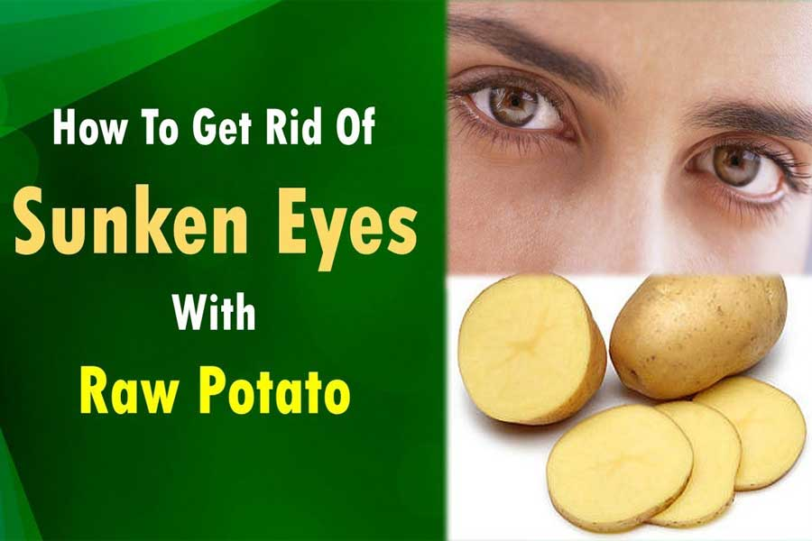 Use Raw Potato Juice to fight with sunken eyes