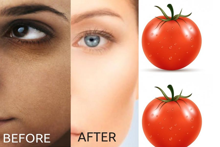 Tomato face pack for dark circles