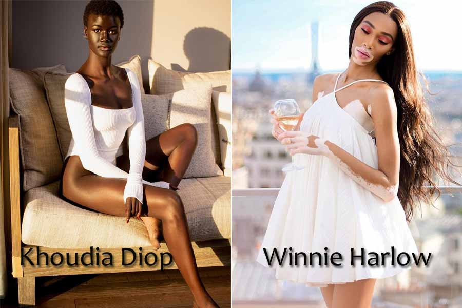 7 People with Unique Skin Colour and Amazing Features
