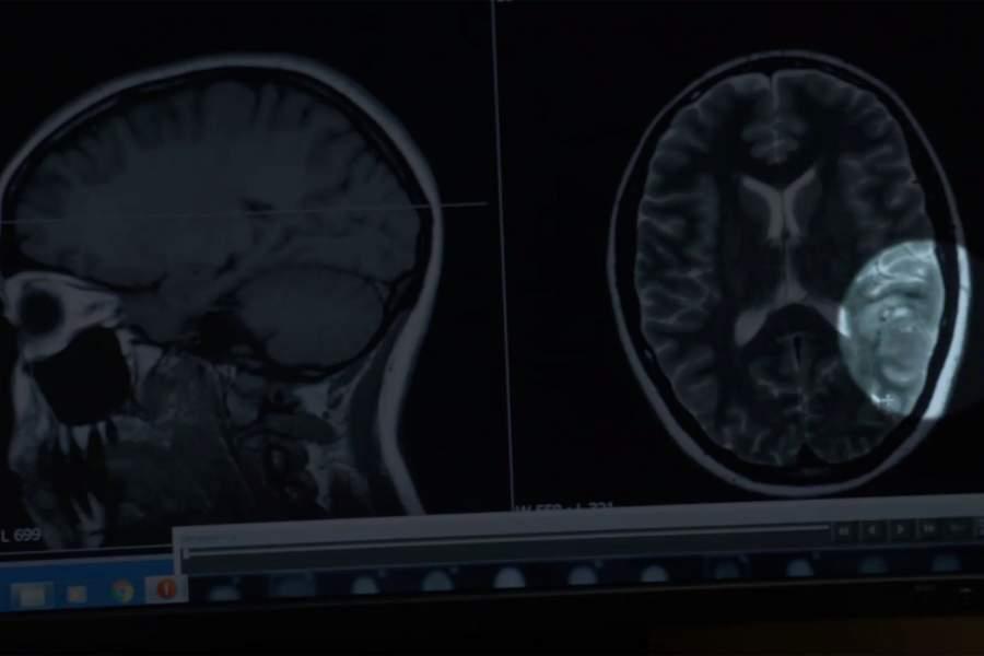 Wide Awake Brain Surgery