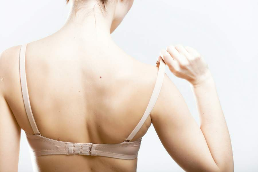 Tight lingerie or bras could cause skin problems
