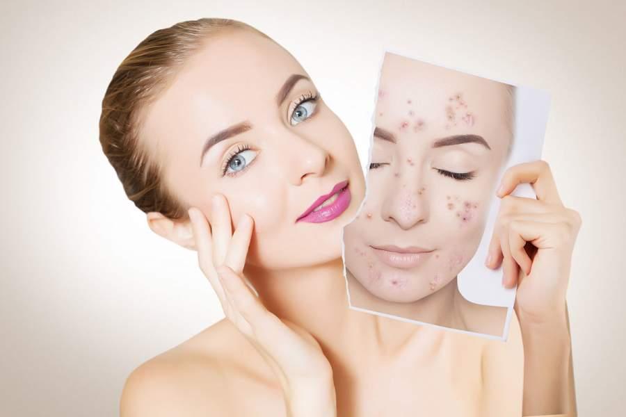 Skin-care regimen