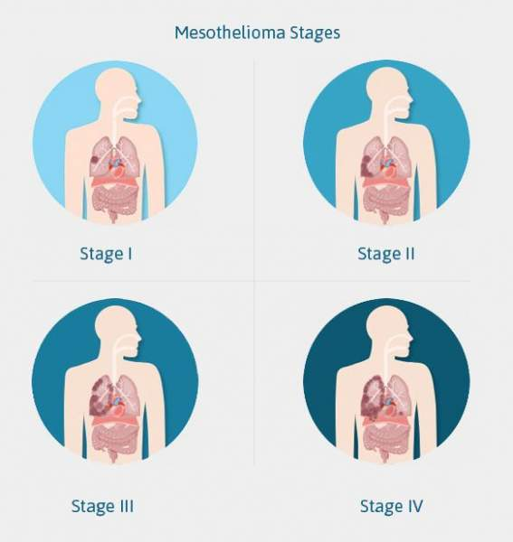 Stages of Mesothelioma