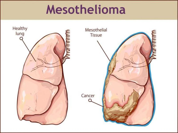 Mesothelioma Symptoms and Treatment