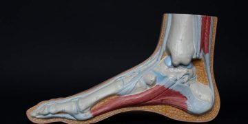Achilles Tendon Injury Care