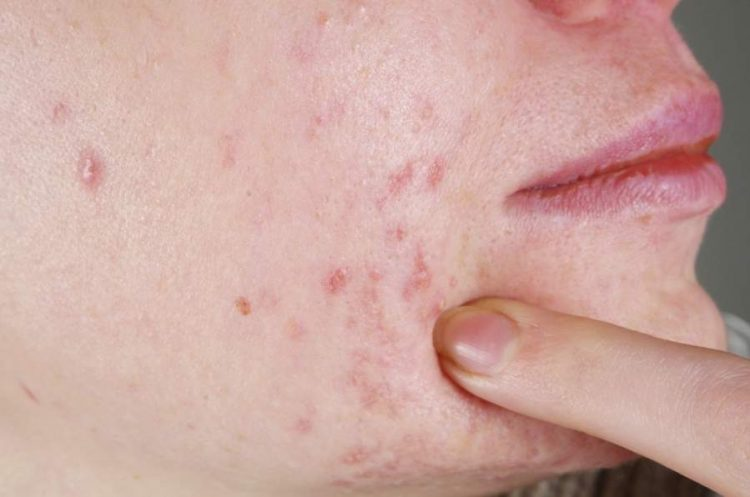 What Foods Can Cause Acne
