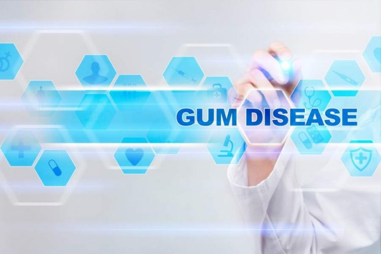 What is Gum Disease and How Can You Prevent It?