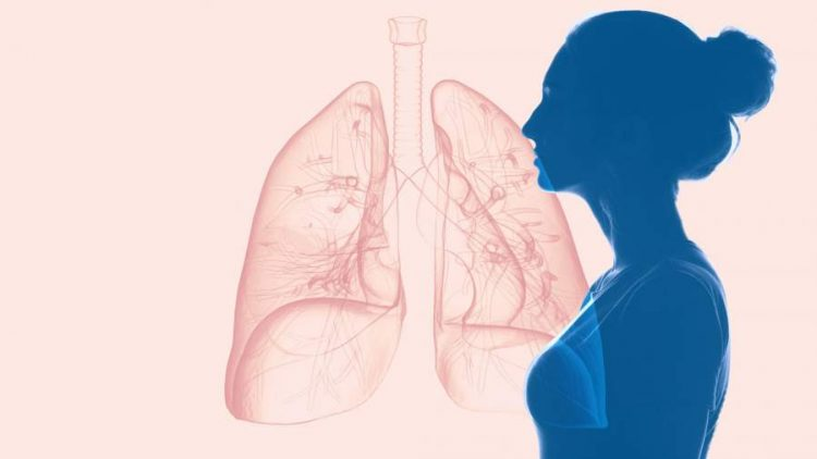 Signs of Lung Cancer in Women