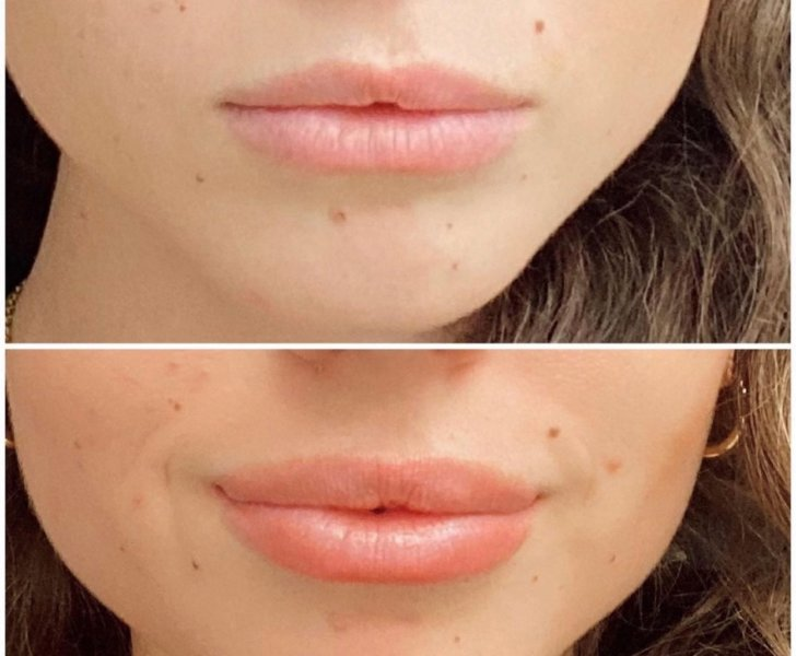 Botox Lip Flip Before and After